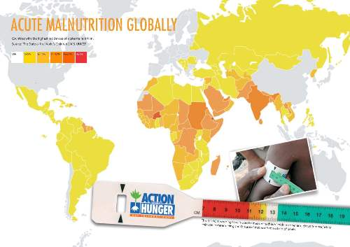 Acute malnutrition map.