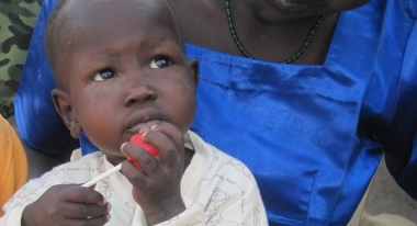 Baby Akot, healthy after receiving therapeutic treatment