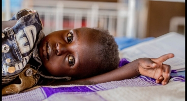 A child is treated for malnutrition and malaria at Aweil Stabilization Center, South Sudan. Credit: Andrew Parsons / i-Images for Action Against Hunger