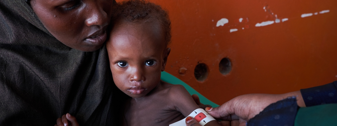 A Somali child is measured for malnutrition at an Action Against Hunger clinic.