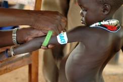 A child is tested for malnutrition